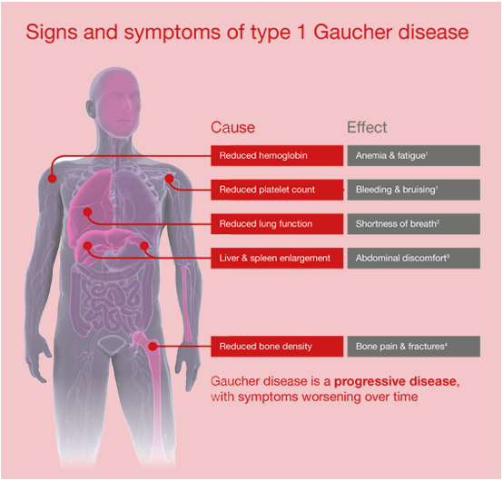 Gaucher Disease Symptoms Infographic